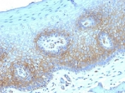 IHC testing of FFPE human cervical carcinoma with Thrombomodulin antibody (clone THBD/1782). HIER: boil tissue sections in 10mM Tris buffer with 1mM EDTA, pH 9, for 10-20 min followed by cooling at RT for 20 min.