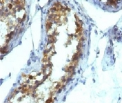 IHC testing of FFPE testicular carcinoma and Alkaline Phosphatase antibody (KSUL-1). Required HIER: boil tissue sections in 10mM Tris with 1mM EDTA, pH 9, for 10-20 min followed by cooling at RT for 20 min.