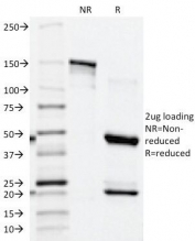 SDS-PAGE Analysis of Purified, BSA-Free PSAP Antibody (ACCP/1339). Confirmation of Integrity and Purity of the Antibody.