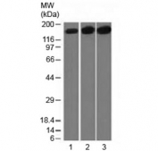 Western blot testing of 1) human HepG2, 2) HeLa and 3) mouse NIH3T3 cell lysate with Topoisomerase II alpha antibody (clone TOP2A/1361). Expected molecular weight ~174 kDa.