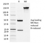SDS-PAGE Analysis of Purified, BSA-Free TSHR Antibody (clone TSHRA/1404). Confirmation of Integrity and Purity of the Antibody.