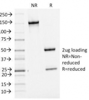 SDS-PAGE analysis of purified, BSA-free Bcl6 antibody (clone BCL6/1475). Confirmation of integrity and purity of the antibody.