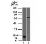Western blot testing of 1) partial recombinant protein and 2) human HepG2 lysate with Bcl6 antibody (clone BCL6/1475). Expected molecular weight: 78/95 kDa (non-phosphorylated/phosphorylated).