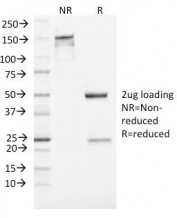 SDS-PAGE Analysis of Purified, BSA-Free Neuron Specific Enolase Antibody (clone ENO2/1462). Confirmation of Integrity and Purity of the Antibody.