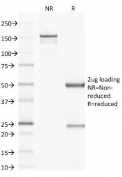 SDS-PAGE Analysis of Purified, BSA-Free Factor XIIIa Antibody (clone F13A1/1683). Confirmation of Integrity and Purity of the Antibody.