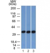Western blot testing of human 1) HEK293, 2) A431 and 3) HCT116 cell lysate with anti-EpCAM antibody (clone EGP40/1372). Expected molecular weight: ~35 kDa (unmodified), 40-43 kDa (glycosylated).
