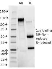 SDS-PAGE Analysis of Purified, BSA-Free CD11b Antibody (clone ITGAM/271). Confirmation of Integrity and Purity of the Antibody.
