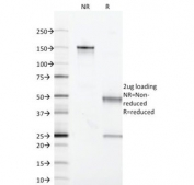 SDS-PAGE Analysis of Purified, BSA-Free Acidic Cytokeratin Antibody (clone KRTL/1377). Confirmation of Integrity and Purity of the Antibody.
