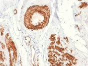 IHC testing of FFPE human leiomyosarcoma with recombinant Caldesmon antibody (clone rCALD1/820). Required HIER: boil tissue sections in 1mM EDTA, pH 7.5-8.5, for 10-20 min.