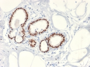 IHC testing of FFPE human breast cancer with Estrogen Receptor antibody (clone ESR1/2299R). Required HIER: boil tissue sections in 10mM citrate buffer, pH 6, for 10-20 min followed by cooling at RT for 20 min.