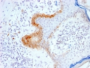 IHC testing of FFPE human skin with recombinant Cytokeratin 15 antibody (clone KRT15/2103R). Required HIER: boil tissue sections in pH6, 10mM citrate buffer, for 10-20 min followed by cooling at RT for 20 min.