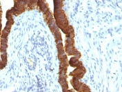 IHC testing of FFPE human ovarian carcinoma with recombinant EpCAM antibody (clone rEGP40/1110). Required HIER: boil tissue sections in 10mM citrate buffer, pH 6, for 10-20 min followed by cooling at RT for 20 min.