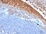 IHC testing of FFPE human tonsil with CD146 antibody (clone rMUC18/1130). Required boiling tissue sections in 10mM Tris with 1mM EDTA, pH8, for 10-20 min followed by cooling at RT for 20 min.