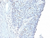 IHC testing of FFPE human endometrial carcinoma with Cyclin A2 antibody. Required HIER: steam section in pH6 citrate buffer for 20 min and allow to cool prior to staining.