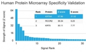 Analysis of HuProt(TM) microarray containing more than 19,000 full-length human proteins using Cytokeratin 6 antibody (clone KRT6A/2368). These results demonstrate the foremost specificity of the KRT6A/2368 mAb. Z- and S- score: The Z-score represents the strength of a signal that an antibody (in combination with a fluorescently-tagged anti-IgG secondary Ab) produces when binding to a particular protein on the HuProt(TM) array. Z-scores are described in units of standard deviations (SD's) above the mean value of all signals generated on that array. If the targets on the HuProt(TM) are arranged in descending order of the Z-score, the S-score is the difference (also in units of SD's) between the Z-scores. The S-score therefore represents the relative target specificity of an Ab to its intended target.