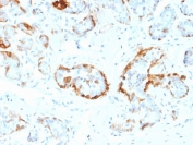 IHC staining of FFPE human breast tissue with CRYAB antibody (clone CPTC-CRYAB-1). HIER: boil tissue sections in pH6, 10mM citrate buffer, for 10-20 min and allow to cool before testing.
