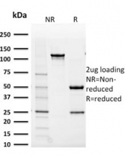 SDS-PAGE analysis of purified, BSA-free AKR1B1 antibody (clone CPTC-AKR1B1-2) as confirmation of integrity and purity.