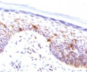 IHC testing of FFPE human skin stained with CD1a antibody (clone CLDA1a). Staining of formalin-fixed tissues requires boiling tissue sections in pH 9 10mM Tris with 1mM EDTA for 10-20 min followed by cooling at RT for 20 min.