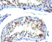 IHC analysis of Prolactin receptor antibody (clone ERSV8-1) and testicular carcinoma. Required HIER: digestion of tissue sections with pepsin at 1mg/ml in Tris-HCl, pH 2, for 15 min at RT or 10 min at 37oC.