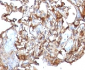 IHC testing of human melanoma and CD146 antibody