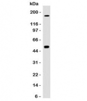 Western blot testing of HCT116 cell lysate with CAIX antibody (clone CBAD9-1). Predicted molecular weight: 50-55 kDa.