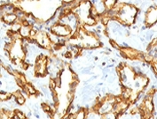 IHC staining of FFPE human angiocarcinoma with recombinant CD31 antibody (clone RMCD31-1). HIER: steam sections in 1mM EDTA, pH 9, for 10-20 min.