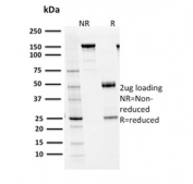 SDS-PAGE analysis of purified, BSA-free PSAT1 antibody (clone CPTC-PSAT1-1) as confirmation of integrity and purity.