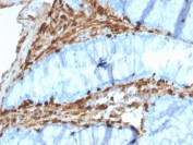 IHC testing of FFPE human colon carcinoma with Annexin A1 antibody (clone CPTC-ANXA1-1). Required HIER: steam section in pH6 citrate buffer for 20 min and allow to cool prior to staining.