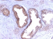 IHC staining of FFPE human prostate carcinoma with PSA antibody (clone KLK3/2871R). HIER: boil tissue sections in 10mM Tris with 1mM EDTA, pH 9 for 10-20 min and allow to cool before testing.