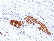 IHC staining of FFPE human colon ganglion with CD56 antibody (clone 56C04 + 123C.D5). HIER: boil tissue sections in pH6, 10mM citrate buffer, for 10-20 min followed by cooling at RT for 20 min.
