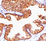 IHC staining of FFPE human prostate carcinoma with PMEPA1 antibody (clone PTAI1-1). HIER: boil tissue sections in pH 9 10mM Tris with 1mM EDTA for 10-20 min and allow to cool before testing.