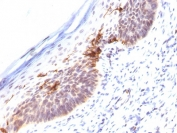 IHC staining of FFPE human skin with CD1a antibody (clone SPM120). HIER: boil tissue sections in pH 9 10mM Tris with 1mM EDTA for 10-20 min followed by cooling at RT for 20 min.