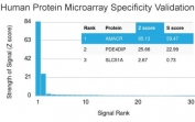 Analysis of HuProt(TM) microarray containing more than 19,000 full-length human proteins using AMACR antibody (clone AMACR/1864). These results demonstrate the foremost specificity of the AMACR/1864 mAb. Z- and S- score: The Z-score represents the strength of a signal that an antibody (in combination with a fluorescently-tagged anti-IgG secondary Ab) produces when binding to a particular protein on the HuProt(TM) array. Z-scores are described in units of standard deviations (SD's) above the mean value of all signals generated on that array. If the targets on the HuProt(TM) are arranged in descending order of the Z-score, the S-score is the difference (also in units of SD's) between the Z-scores. The S-score therefore represents the relative target specificity of an Ab to its intended target.