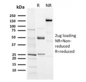 SDS-PAGE analysis of purified, BSA-free recombinant Aurora B antibody (clone AURKB/3121R) as confirmation of integrity and purity.