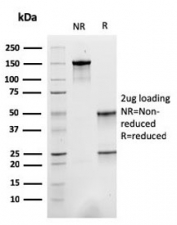 SDS-PAGE analysis of purified, BSA-free Sarcomeric Alpha Actinin antibody (clone ACTN2/3293) as confirmation of integrity and purity.