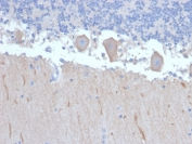 IHC staining of FFPE human brain with ATG5 antibody (clone ATG5/2492). HIER: boil tissue sections in pH 9 10mM Tris with 1mM EDTA for 10-20 min and allow to cool before testing.
