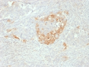 IHC staining of FFPE human neuroendocrine tumor with NSE antibody. HIER: boil tissue sections in pH 9 10mM Tris with 1mM EDTA for 10-20 min and allow to cool before testing.