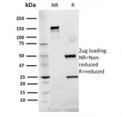 SDS-PAGE analysis of purified, BSA-free Fibronectin antibody (clone Fn-3) as confirmation of integrity and purity.