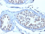 IHC staining of FFPE human testicular carcinoma with B7-H4 antibody (clone B7H4/1788). HIER: boil tissue sections in pH 9 10mM Tris with 1mM EDTA for 20 min and allow to cool before testing.