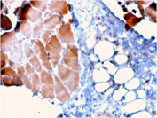 IHC staining of FFPE human skeletal muscle tissue with Actinin Alpha 2 antibody (clone ACTN2/3295). HIER: boil tissue sections in pH 9 10mM Tris with 1mM EDTA for 10-20 min and allow to cool before testing.