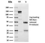 SDS-PAGE analysis of purified, BSA-free Actinin Alpha 2 antibody as confirmation of integrity and purity.