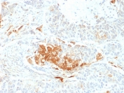 IHC staining of FFPE human neuroendocrine tumor with NSE antibody (clone ENO2/2706). HIER: boil tissue sections in pH 9 10mM Tris with 1mM EDTA for 20 min and allow to cool before testing.