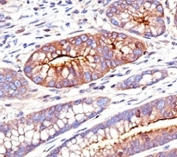 IHC: Formalin-fixed, paraffin-embedded human colon carcinoma stained with CEA antibody (SPM551)