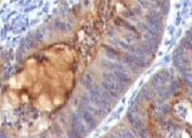 IHC: Formalin-fixed, paraffin-embedded human colon carcinoma stained with IgA Secretory Component antibody (SPM217).