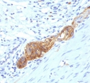 IHC: Formalin-fixed, paraffin-embedded human colon stained with anti-CD56 antibody (SPM489)