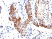 IHC: Formalin-fixed, paraffin-embedded human testicular carcinoma stained with FOXP3 antibody (SPM579).