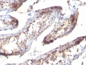 IHC staining of FFPE human testicular carcinoma with TGF-a antibody (clone SPM357). HIER: pH 9 10mM Tris with 1mM EDTA.