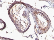 IHC: Formalin-fixed, paraffin-embedded human testicular carcinoma stained with anti-TGF alpha antibody (SPM542)