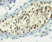 IHC: Formalin-fixed, paraffin-embedded human testicular carcinoma stained with anti-Thymidylate Synthase antibody (clone SPM453).
