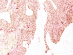 IHC: Formalin-fixed, paraffin-embedded human small cell lung carcinoma stained with Chromogranin A antibody (SPM339)